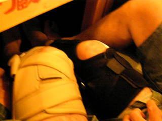 靭帯損傷Bro.JPG